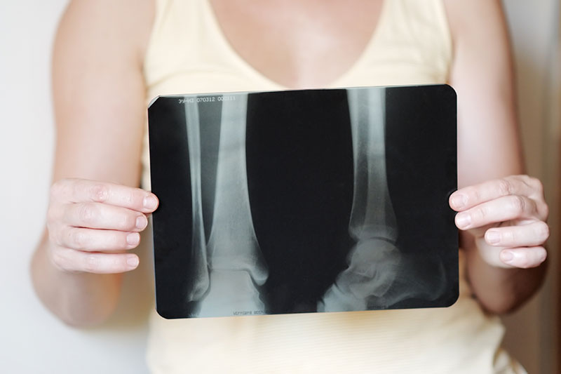 Osteoporosis & Menopause
